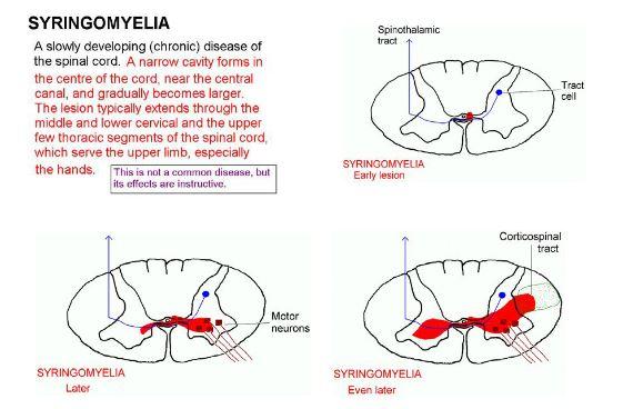 Image result for syringomyelia