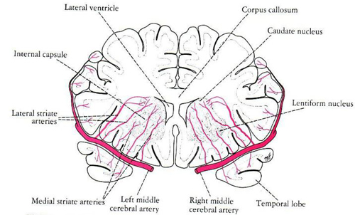Cerebral Ventricles And Vessels