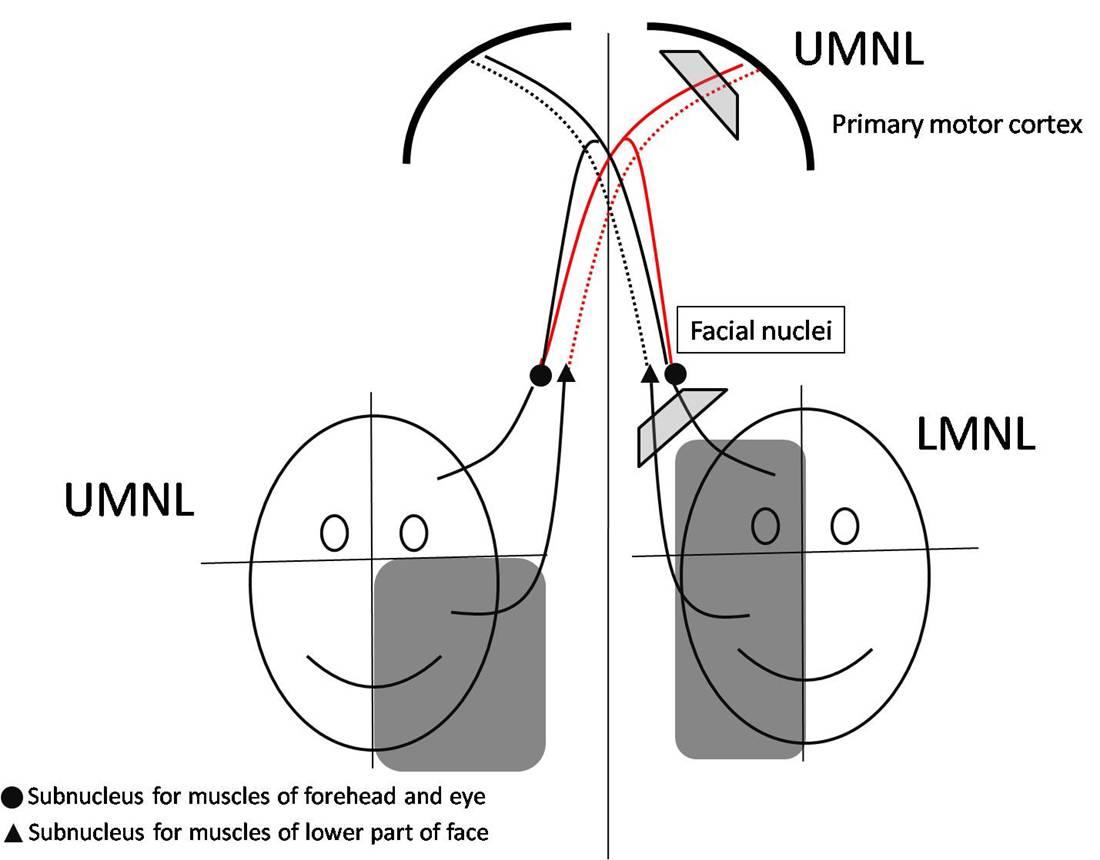Bells Palsy Facial Nerve Problems: Symptoms, Treatment